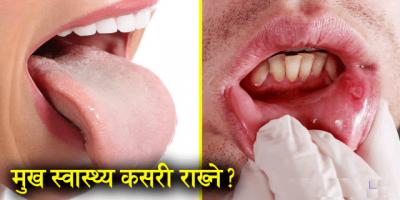 ख्याल गर्नुस : ९० प्रतिशत रोग मुख स्वस्थ नहुँदा हुन्छ !